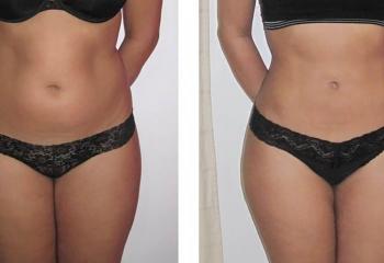 Liposonix похудение